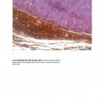 Tumor MDA MB 231 II