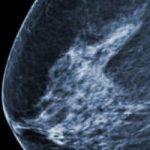 Vers un vaccin universel contre le cancer ?