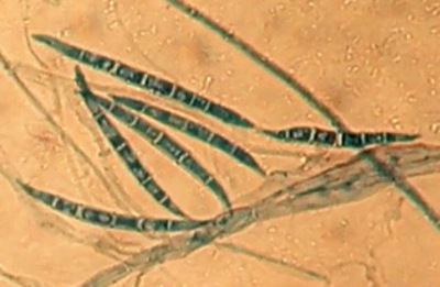 Fusarium gramineraum, un champignon producteur de déoxynivalénol© Inra, Sylviane BAILLY