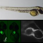 Le poisson zèbre, un modèle idéal pour l'étude des ciliopathies