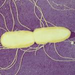 Résistance aux antibiotiques : une chronologie inattendue