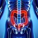 Un test pour évaluer l'évolution du cancer du côlon